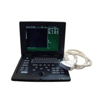 Laptop Ultrasound Scanner 600P